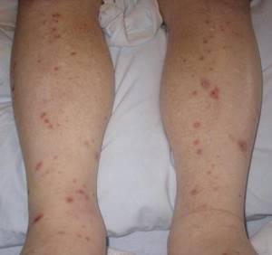 Красные высыпания на ноге у ребенка - советы врачей на каждый день