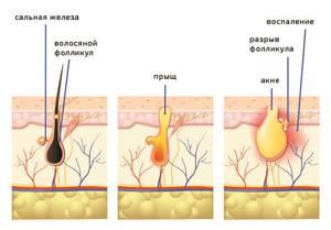 Воспаление волосяных фолликулов - советы врачей на каждый день