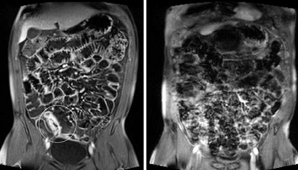 Делать ли мрт кишечника - советы врачей на каждый день
