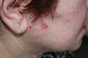 Почему шишка на голове не проходит - советы врачей на каждый день