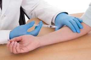 Реакция на Диаскинтест, получение лечения - советы врачей на каждый день