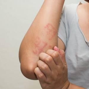Аллергия или бронхиальная астма - советы врачей на каждый день