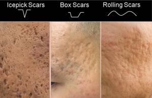 Пятна на коже - советы врачей на каждый день