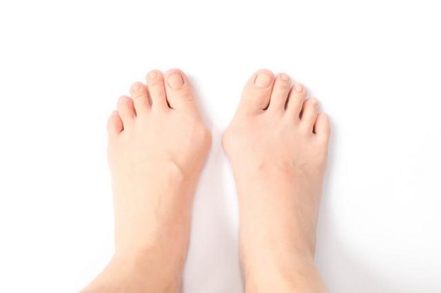 Шишки - узлы на ногах и руках - советы врачей на каждый день