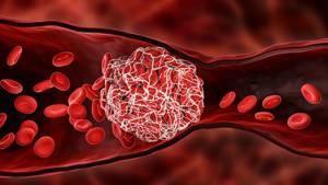Фиброген 4,73 (13 недель) д-димер 910 (14 недель) - советы врачей на каждый день