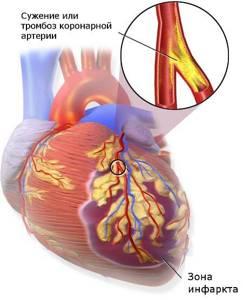 После инфаркта миокарда простыл,чем можно лечиться? - советы врачей на каждый день