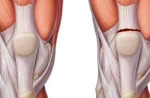 Повреждение связок, узи результат - советы врачей на каждый день