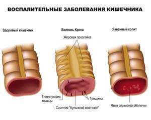 Кровь при стуле - советы врачей на каждый день