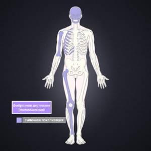 Фиброзная дисплазия берцовой кости - советы врачей на каждый день