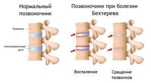 Анкилозирующий спондилит позвонков хвоста - советы врачей на каждый день