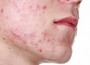 Прыщи на щеке - советы врачей на каждый день