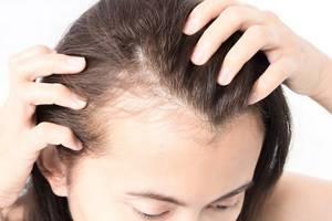 Беспокоит выпадение волос.псориаз на голове - советы врачей на каждый день