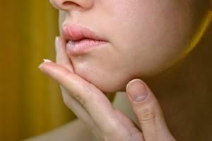 Белое уплотнение на губе после герпеса - советы врачей на каждый день