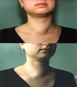 Узел в щитовидной железе - советы врачей на каждый день