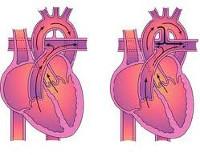 Открытый артериальный проток - советы врачей на каждый день