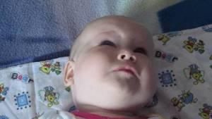 Ребенок закатывает глаза - советы врачей на каждый день