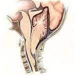 Пролабирование миндалин мозжечка - советы врачей на каждый день