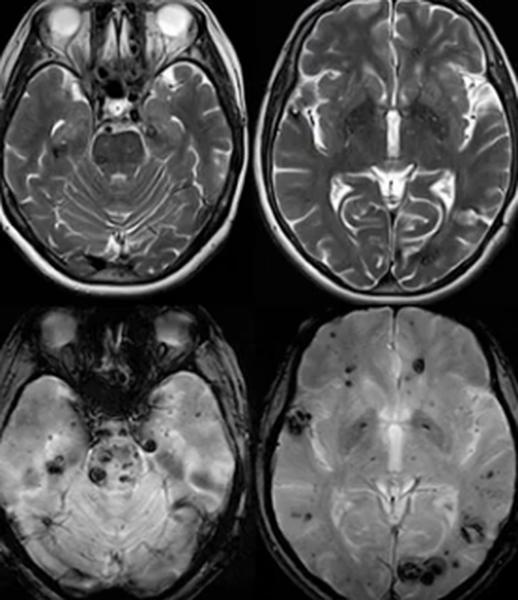 Прошу помощи в разъяснении результатов МРТ головного мозга - советы врачей на каждый день