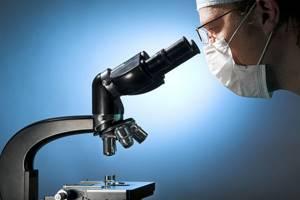 Почему трещина на крайней плоти? - советы врачей на каждый день