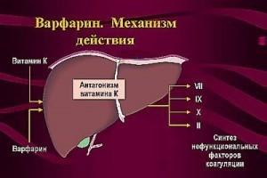 Тромб в сердце - советы врачей на каждый день