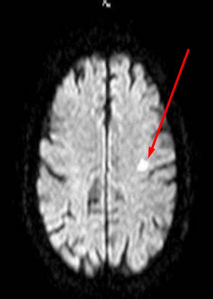 Очаги демиелизации головного мозга неясного генеза - советы врачей на каждый день