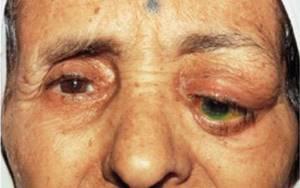 Болезнь на глазах - советы врачей на каждый день