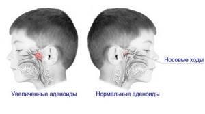 Хронический Аденоидит у ребенка - советы врачей на каждый день