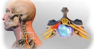 Боли в шее, как защемление - советы врачей на каждый день