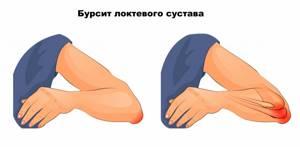 Тянущая боль в руке и шее - советы врачей на каждый день