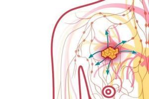 Рак молочной железы т4n0m0 - советы врачей на каждый день