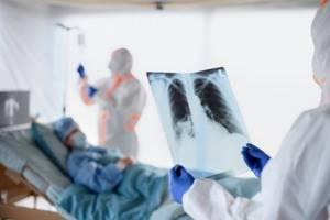 Прошу описать два снимка с пневмонией - советы врачей на каждый день