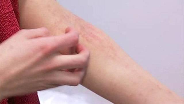 Сыпь, быстро распространяется, ничего не помогает - советы врачей на каждый день