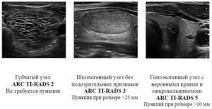 Пункция узла щитовидной железы - советы врачей на каждый день