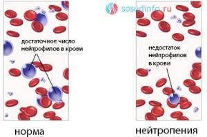 Понижены нейтрофилы, повышены лимфоциты - советы врачей на каждый день