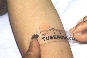 Прививка манту у ребенка 5 лет 11мм результат - советы врачей на каждый день