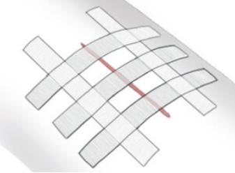 Как использовать силиконовый пластырь если рубец в неудобно месте? - советы врачей на каждый день