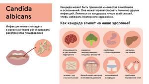С лечении молочницы - советы врачей на каждый день