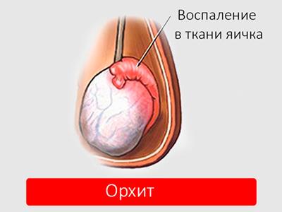 Шишка в мешочке рядом с яичком - советы врачей на каждый день