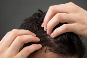 Что делать с покраснением кожи головы? - советы врачей на каждый день