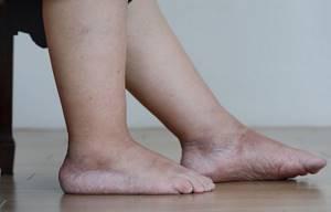 Боль и отек ноги - советы врачей на каждый день
