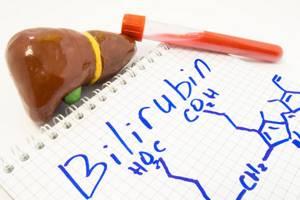 Повышенный общий билирубин - советы врачей на каждый день