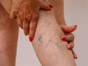 Пятна на ногах - советы врачей на каждый день