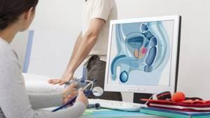 Боль в левом яичке - советы врачей на каждый день