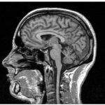Что нам делать .ребенку 9 лет МРТ показало - советы врачей на каждый день