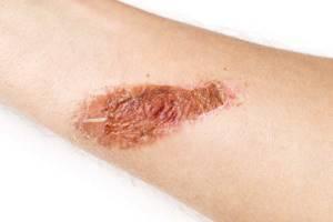 Красная шишка после ожога - советы врачей на каждый день