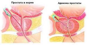 Боль в области мошонки - советы врачей на каждый день