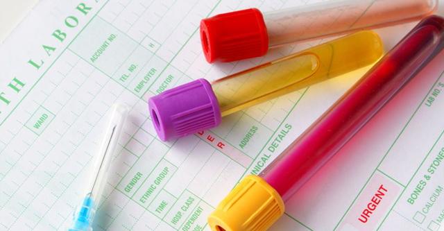 Анализы на гормоны - советы врачей на каждый день