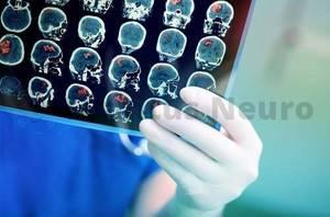 Шум в голове - советы врачей на каждый день