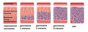 Дисплазия 1 CIN1 - советы врачей на каждый день