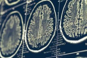 Онкологическая или нет опухоль - советы врачей на каждый день